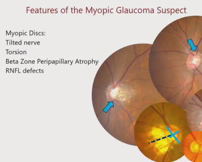myopia glaucoma javult a látás a masszázs után