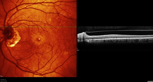 OCT image of case 5 demonstrating the presence of vitreopapillary traction syndrome.