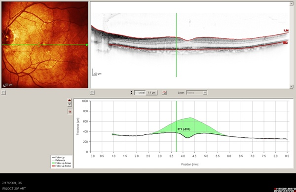 OCT image of case 5 showing the change in macular thickness from baseline in green shadowing.