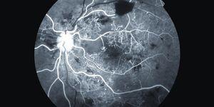 Imagen retiniana de alto contraste en blanco y negro del ojo con retinopatía diabética proliferativa.