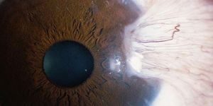 A pterygium seen in close up on a human eye.
