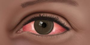 Conjunctivitis What Is Pink Eye