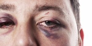 Closeup image of man with injured eyes. An ophthalmologist should examine eye injuries as soon as possible.