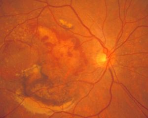 Photograph of the retina of a patient with Wet Macular Degeneration