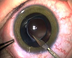 Amblyopia Management Key To Pediatric Cataract Surgery
