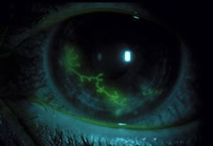 what is herpes keratitis american academy of ophthalmology