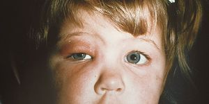 A photograph of a young girl with cellulitis, an infection that has caused her eyelid to swell