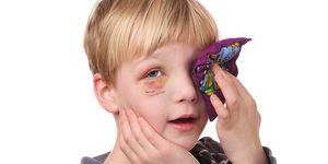 A child using an ice pack to treat a black eye at home.