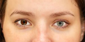 Close-up image of woman with iris heterochromia - two different colored eyes.