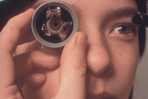 Techniques Of Slit Lamp Gonioscopy American Academy Of Ophthalmology
