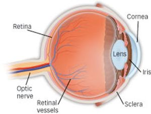 Diabetic Retinopathy Eye