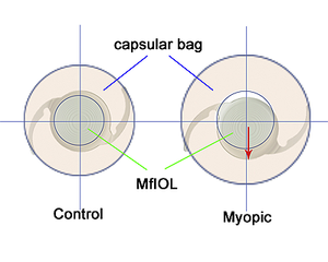 Multifocal IOLs susceptible to decentration in myopic eyes