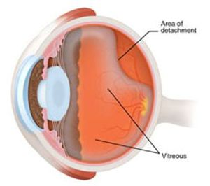 retinal detachment: what is a torn or detached retina? - american, Skeleton