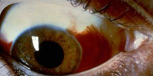 Photo of a subconjunctival hemorrhage, when one or more blood spots appear on the white of your eye.
