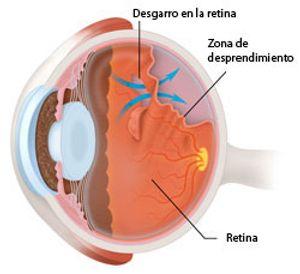Resultado de imagen para desprendimiento de retina