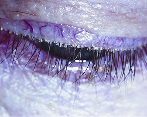 Dry eye blepharitis syndrome: The simple role of biofilm in