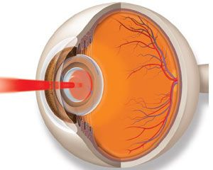 An illustration of a laser beam opens the hazy capsule behind the intraocular lens.