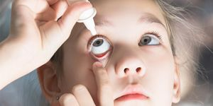 A young girl putting in eye drops to her eye.