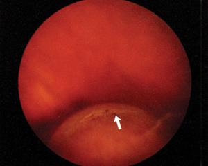 diagnose this tiny asymptomatic atrophic hole american