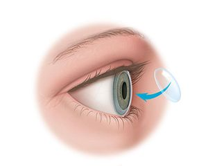 An illustration showing a cornea being removed as part of a corneal transplant. A donor corneal will be grafted onto the eye to replace the tissue that was removed.