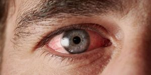 A man's red, irritated eye from pink eye, seen in close-up.