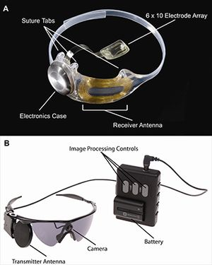 Bionic Eye diagram