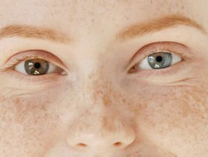 Young woman with heterochromia