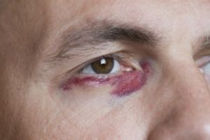 Recognizing And Treating Eye Injuries American Academy