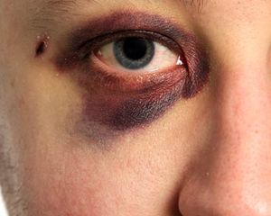Close up of a black eye with bruised eyelids.