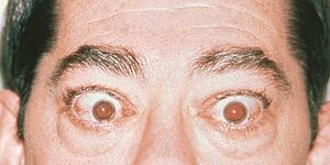 Man with Graves' disease showing symptoms of eyelid retraction, which makes eyes appear to protrude forward