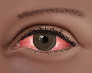 An illustration of red eye, when the white of the eye has inflamed blood vessels. This is often caused by an infection called conjunctivitis or pink eye.