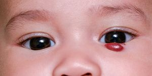 A photo of an infant with a hemangioma under her left eye. A hemangioma is a non-cancerous (benign) tumor caused by abnormal growth of blood vessels.