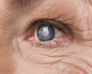 Traditional Cataract Surgery Vs Laser Assisted Cataract Surgery
