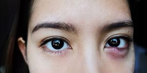 Picture of a young woman with a large, inflamed stye on her lower eyelid.