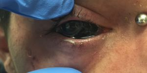 Pre-operative exam of patient who received a scleral tattoo.