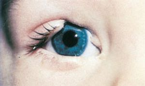 What Is a Coloboma?
