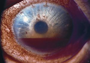 Traumatic Hyphema Current Strategies Surgical Therapy