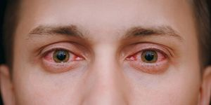 What Are Eye Allergies? - American Academy of Ophthalmology