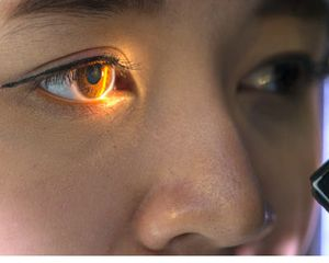 Photograph of a woman with an eye exam light in her eye