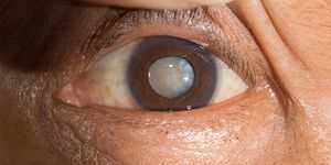 A close up photo of an elderly woman's eye with a cloudy cataract