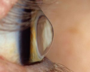 Close up side view of eye with keratoconus.