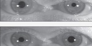 Common visual disturbances encountered in primary headache disorders