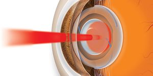 A laser makes an opening in the cloudy lens capsule to restore clear vision.