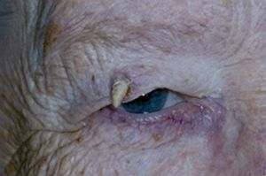 Cutaneous horn - American Academy of Ophthalmology