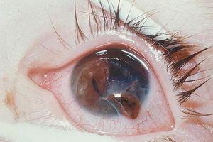 Ruptured globe - American Academy of Ophthalmology