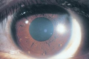 Lisch Nodules Of Iris American Academy Of Ophthalmology