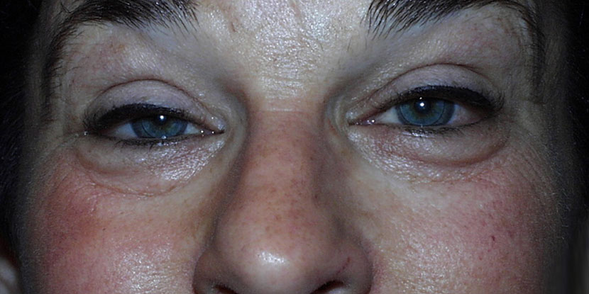 Woman with ptosis or droopy eyelids of both eyes