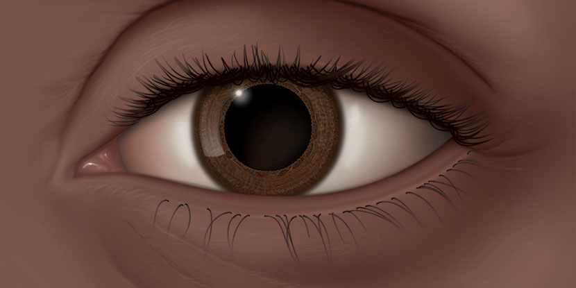 Illustration of a dilated left eye, which lacks the normal pupillary response to light due to Adie's pupil