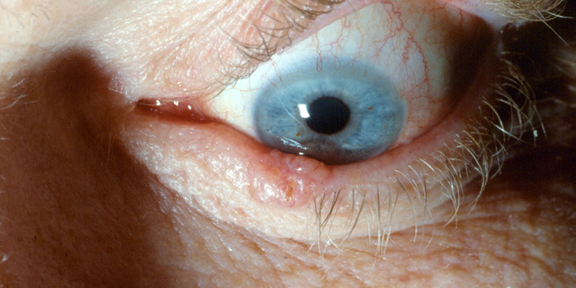 Photograph of a cancerous growth on lower eyelid