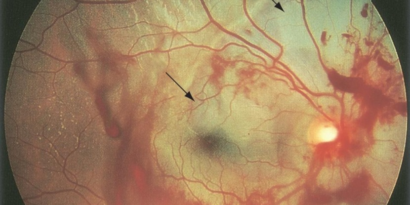 Image of a bruised retina